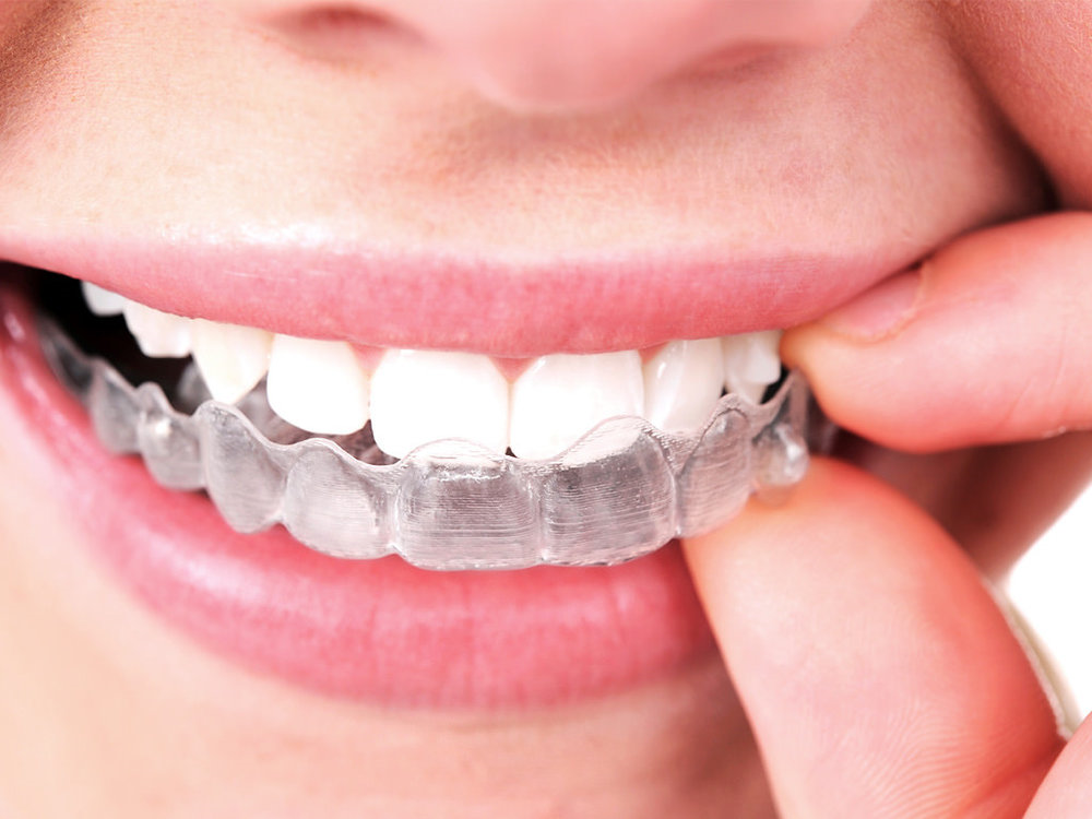 What are the Benefits of Invisible Braces over Traditional Braces